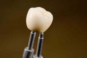 tooth dental